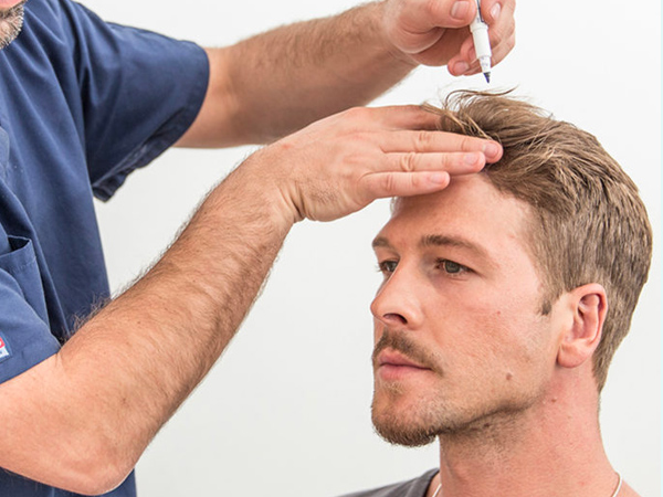 A doctor plan a hair transplant for a young patient