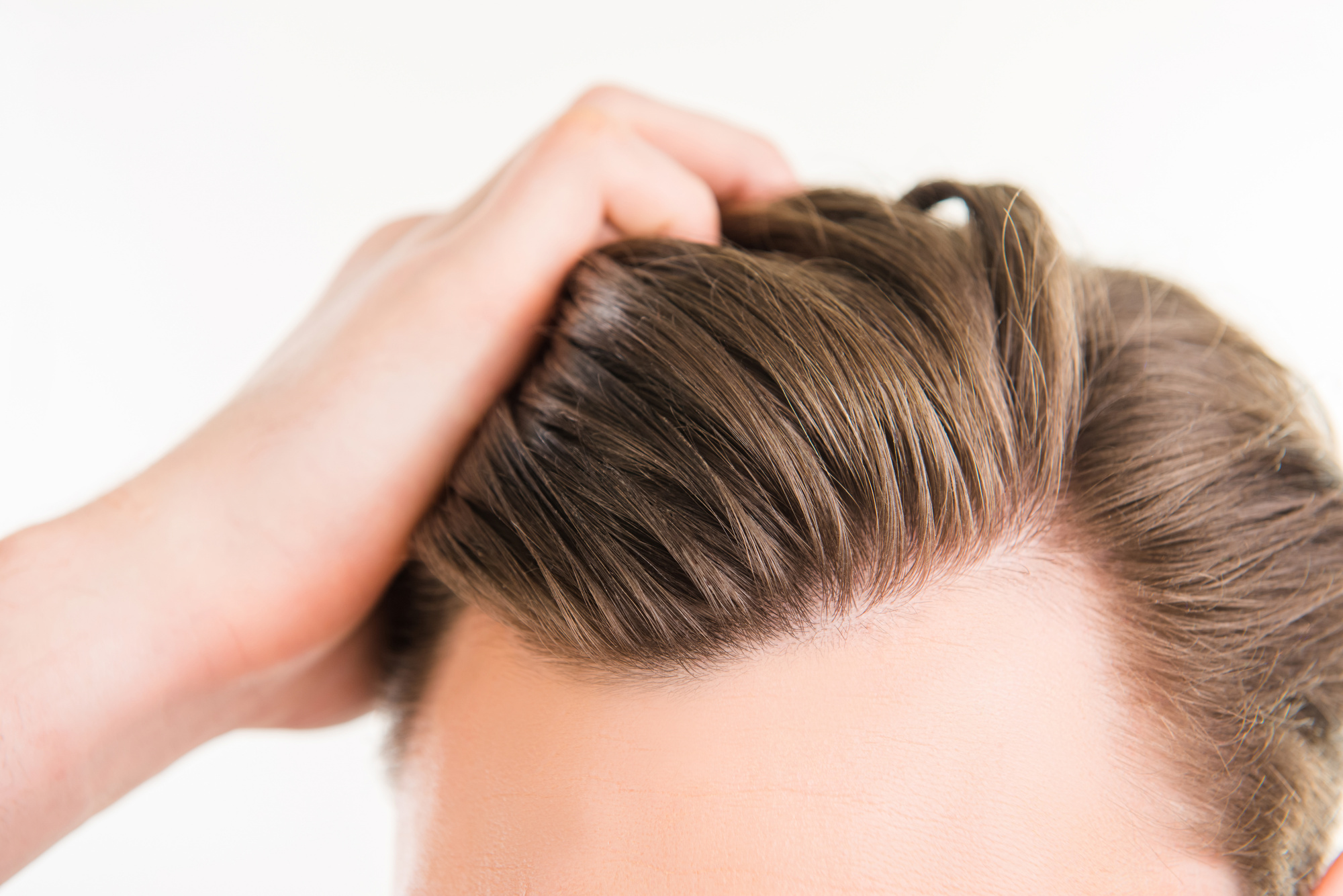 Close up photo of a man pulling is hair back after a hair transplant