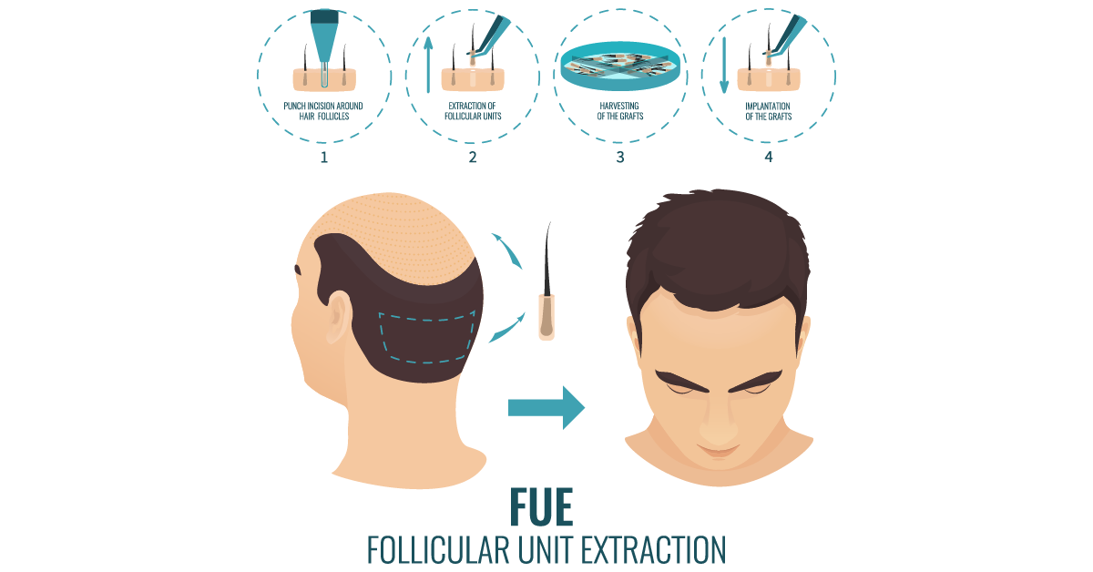 The FUE - Follicular Unit Extraction - An advance hair transplant method