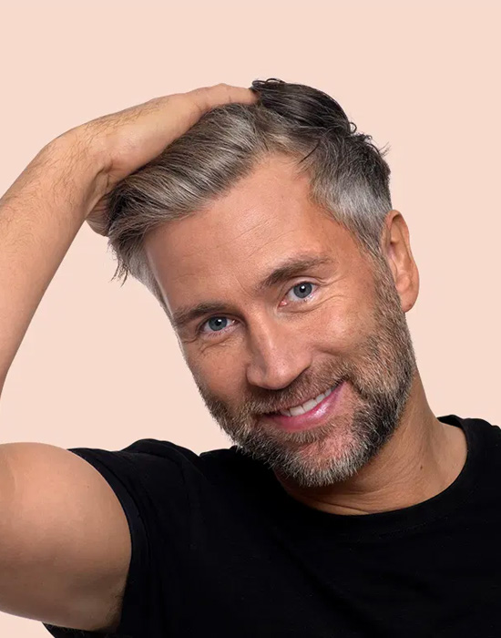 A men smiling after a very successful hair transplant procedure