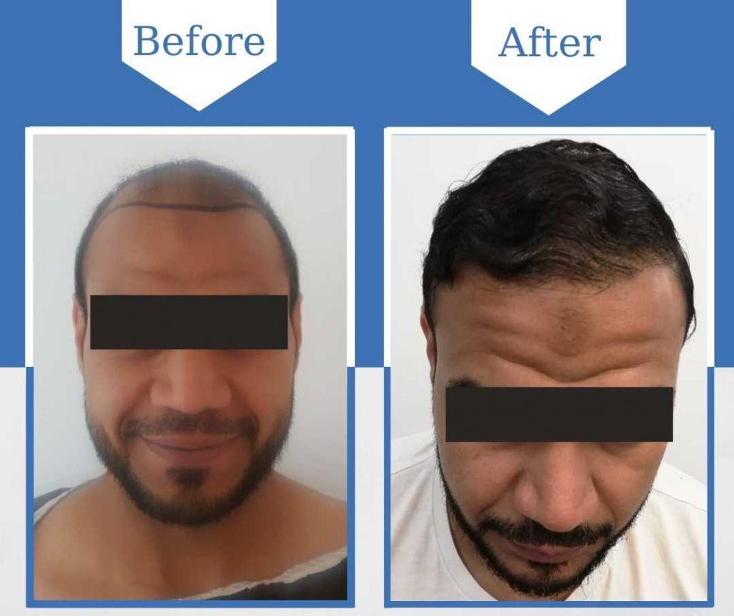 Before & after Hollywood smile treatment in Turkey with BU Clinics and Dr. Bayer