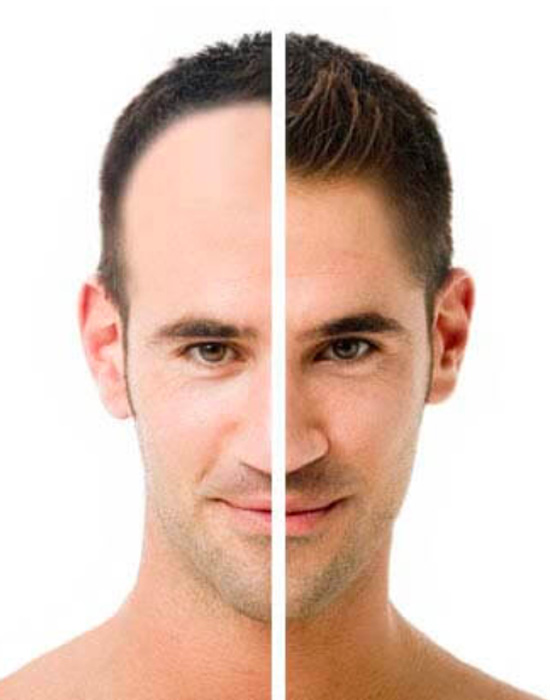 Before & After hair transplant for a young man with receding hairline